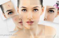 چگونه با استفاد از آرایش جای زخم را پنهان کنید؟