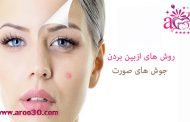 جوش صورت و روش های درمان خانگی  آن چیست؟